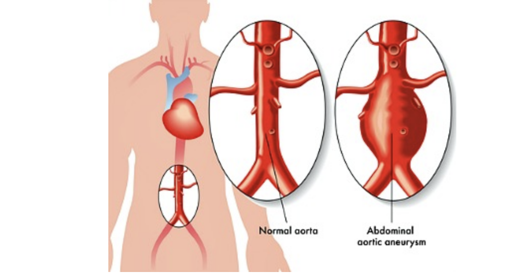 Abdominal aortic aneurysm symptoms This is what your aorta looks like
