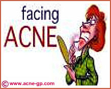 facing up to acne